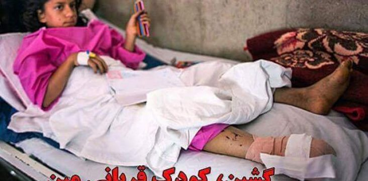 The unclear status of a girl from Marivan who was the victim of a mine explosion