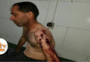 Nowsud: Injury of a kolbar due to direct fire from I.R's border regiment