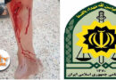 Sna; A citizen was shot by police forces